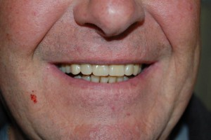 A good quality denture
