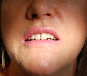 Smile Rehabilaitation at Riverside Dental Practice Braunton North Devon