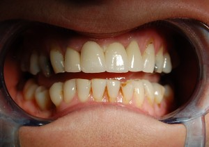 Before treating lower front teeth with replacement ceramic crowns at Riverside Dental Practice Braunton Devon
