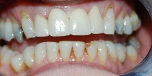 After replacing front tooth with an implant at Riverside Dental Practice Braunton