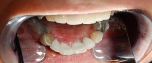 After Before treating lower front teeth with replacement ceramic crowns Riverside Dental practice Braunton