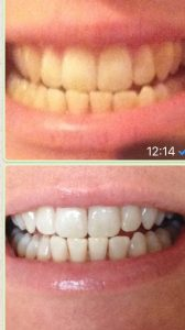 Tooth whitening . Before and after. Riverside Dental Practice Braunton, North Devon
