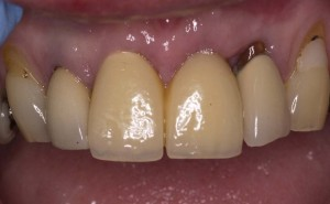 before and after pictures of an implant retained replacement front tooth Riverside Dental Practice Braunton