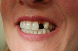 Replacing missing teeth with an adhesive bridge at Riverside Dental Practice, Braunton, Devon UK.