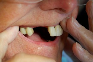Replacing missing teeth with bridges, Riverside Dental Practice Braunton Devon