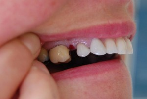 After showing 6 unit bridge replacing the missing teeth in position.