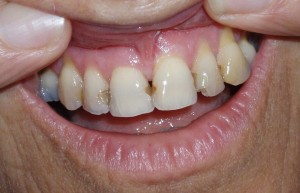 Composite veneers Riverside Dental Practice Braunton