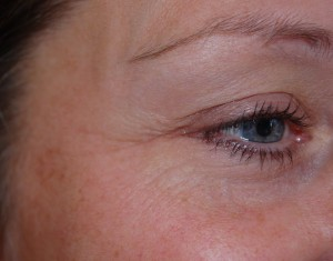 Treating Crow's feet with Botox treatment at Riverside Dental Practice Braunton Devon