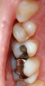 Replacing discoloured fillings at Riverside Dental Practice Braunton, Devon, UK.