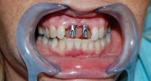 Replacing missing teeth with implants at Riverside Dental Practice Braunton
