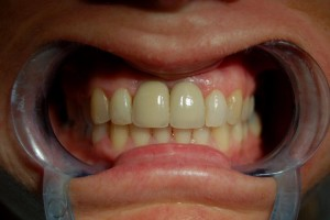 Replacing missing teeth with implants at Riverside Dental Practice Braunton