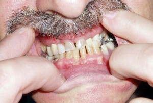 Smile Rehabilitation at Riverside Dental Practice Braunton Devon