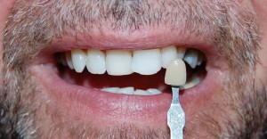 Tooth whitening at Riverside Dental Practice Braunton Devon